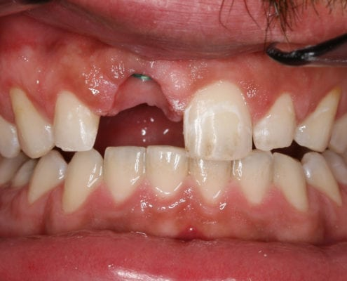Example of a Dental Implant - Before