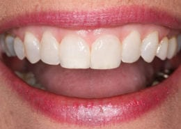 Conservative Cosmetic Bonding - After Picture